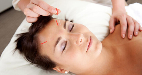 Acupuncture Brampton